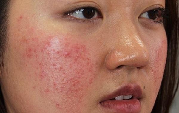 Cảnh báo nguy hiểm sưng mặt vì thuốc bắc tái tạo da